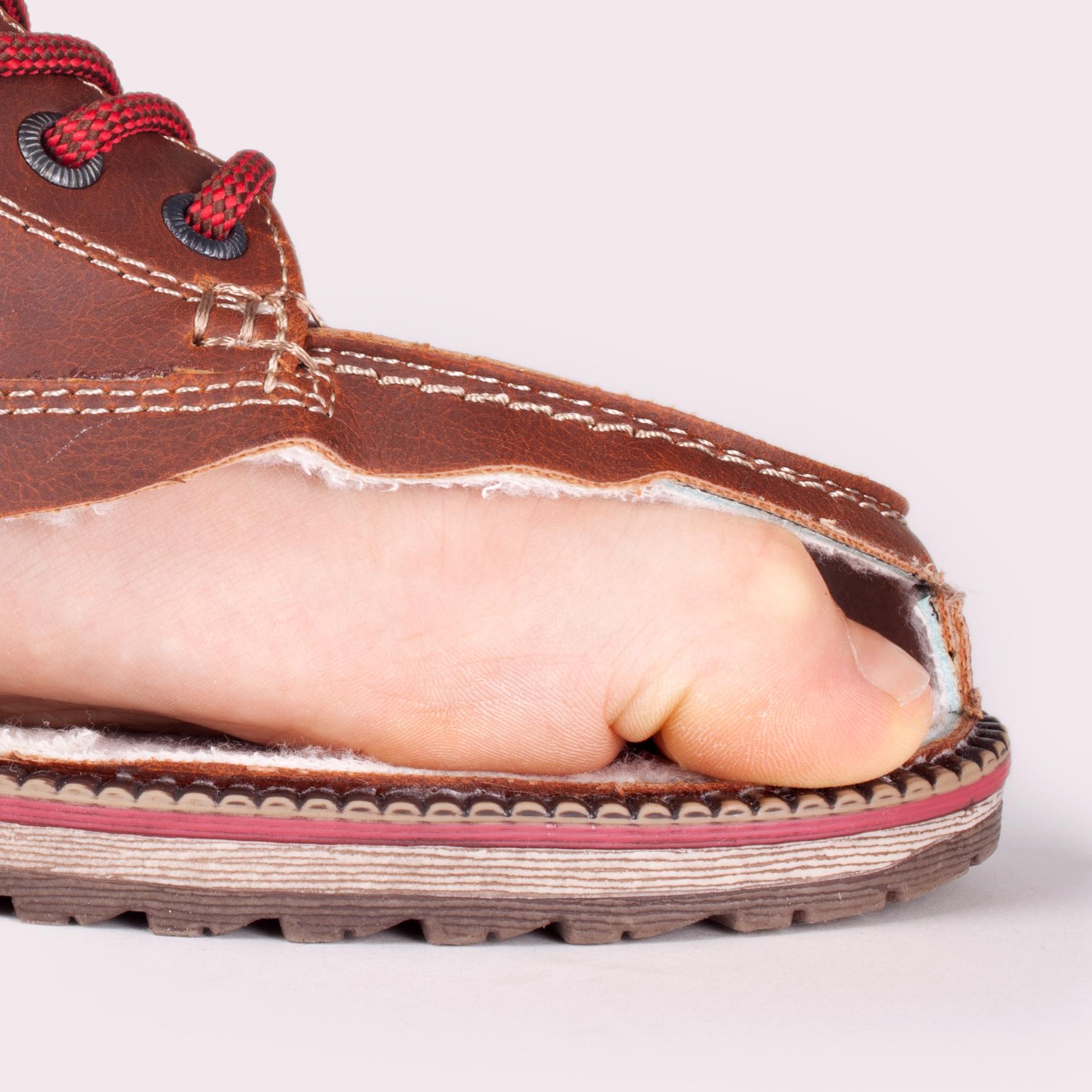 Неправильный размер обуви